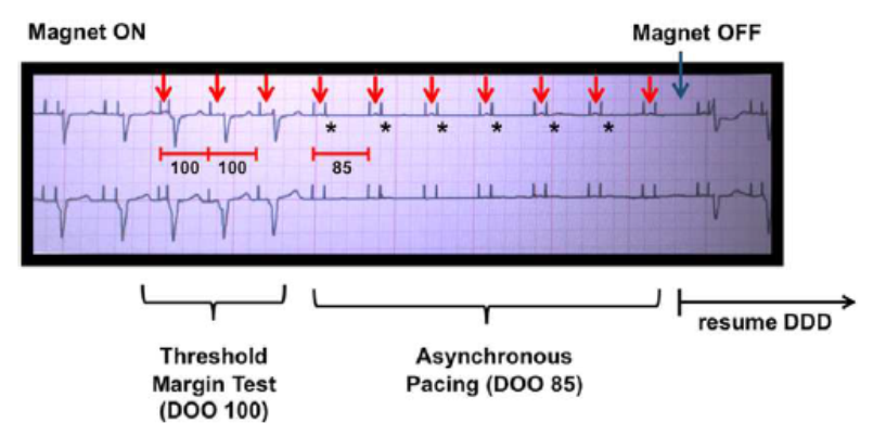 asystole during pacemaker magnet application 1