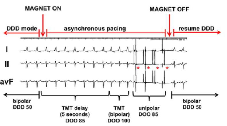 asystole during pacemaker magnet application 2